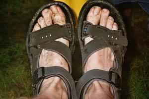 Not very clean feet...